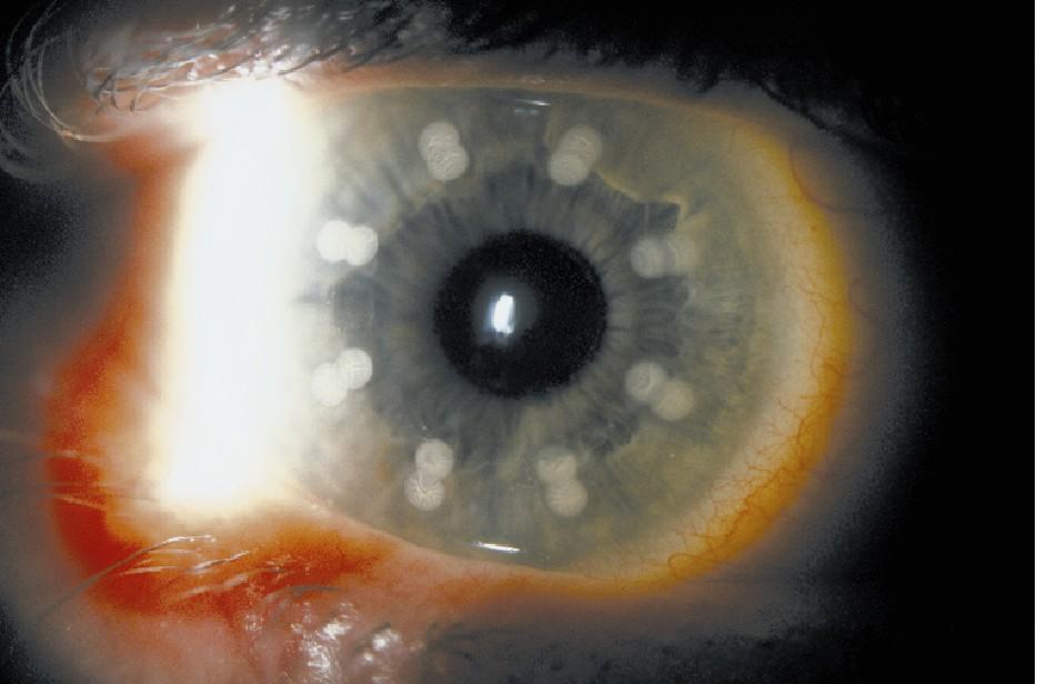 Laser Thermal Keratoplasty